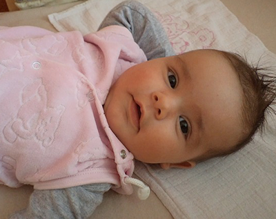 Oblik glave kod bebe